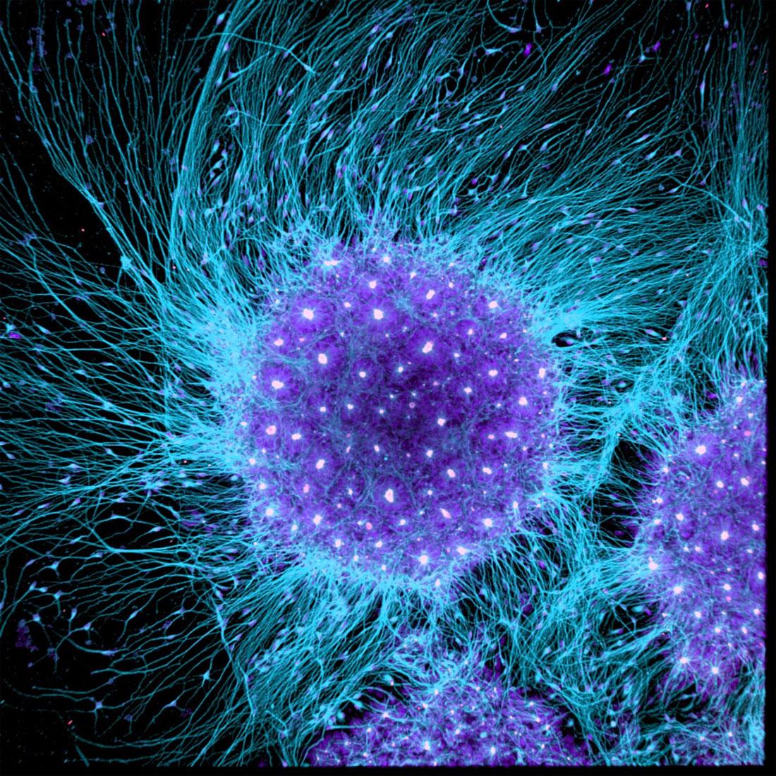 Célula de cerebro humano generada desde una célula madre